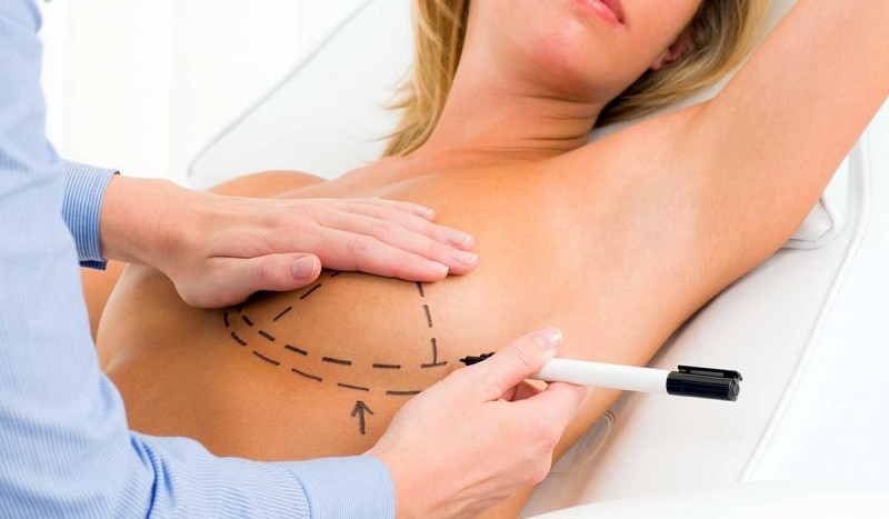 Dr-Lane-Smith-Breast-Augmentation-Procedures-Las-Vegas