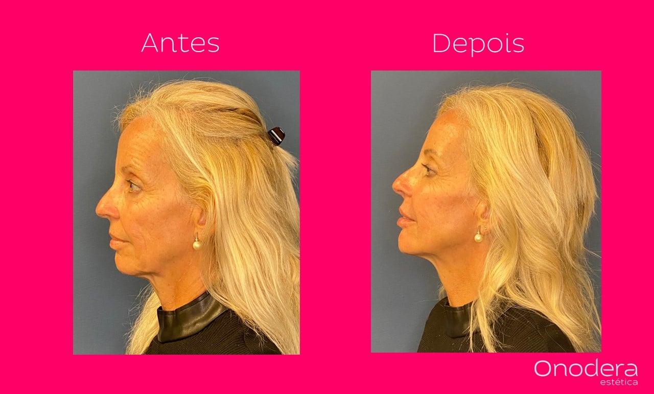 harmonização facial onodera curitiba 2